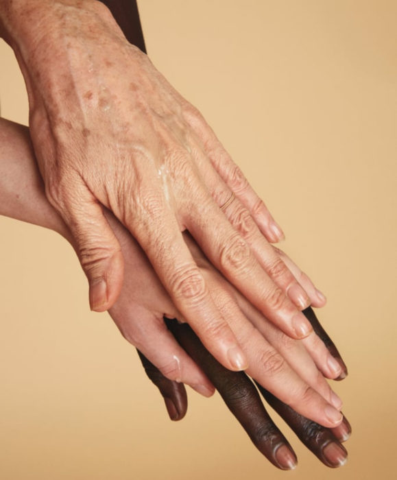 Beneficios del aloe vera o sábila; manos de mujeres de diferentes colores y edades