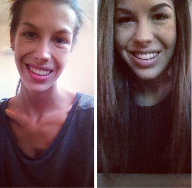 chica en dos aspectos después de ser muy delgada y luego ganar algo de peso después de superar la anorexia