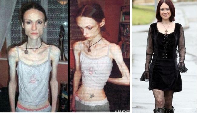 progreso de una chica con anorexia antes durante y después de la enfermedad