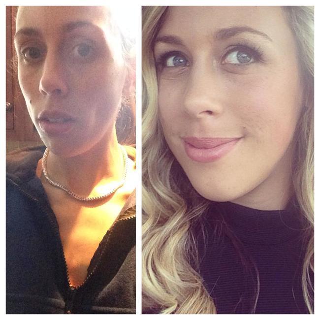 mujer que sufría de anorexia se muestra el antes, dodnde esta muy delgada y el después donde muestra una mejoría en su rostro