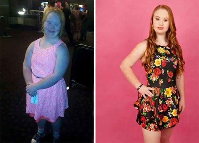 chica con sindrome de down usando un vestido y posando para una fotografía