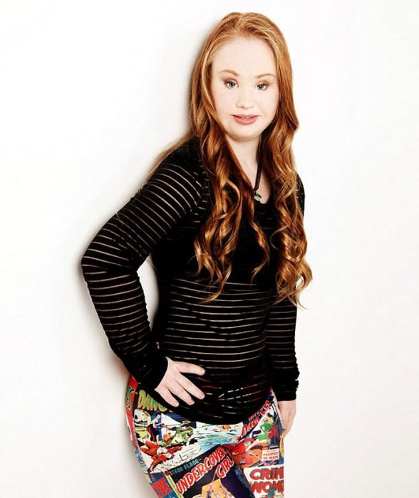 niña con síndrome de Down posando para una fotografía