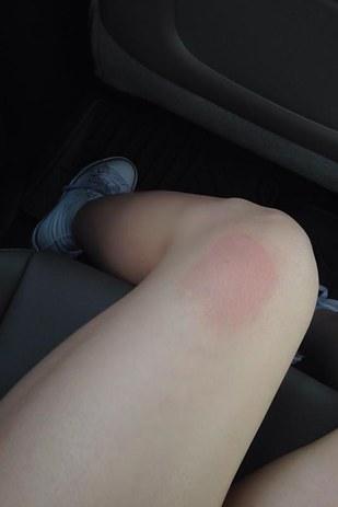 pierna de una mujer con una marca