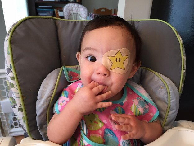 niña usando un parche en el ojo con forma de estrella