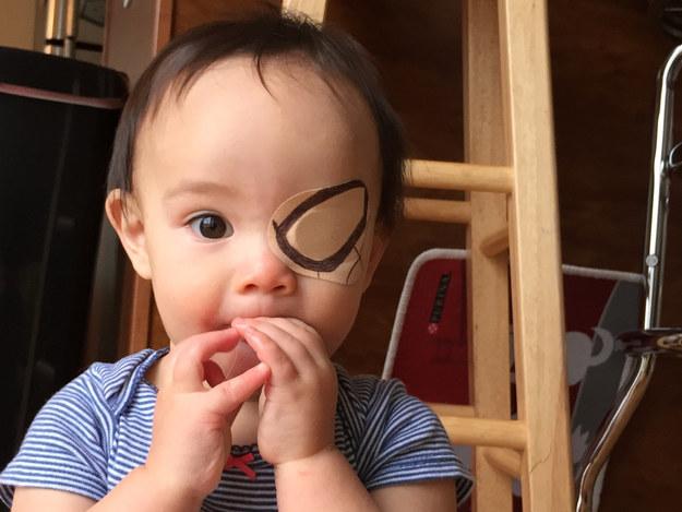 niña con un parche en el ojo en forma de spiderman