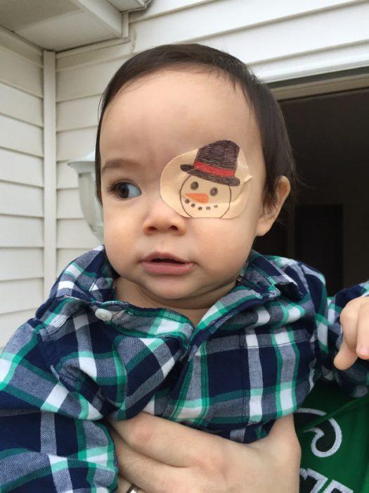 niña en brazos de su papá usando un parche en el ojo