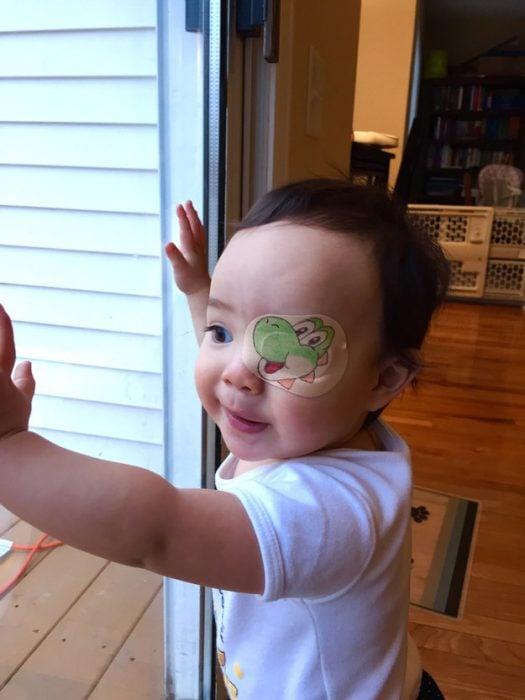 niña con un parche en el ojo en forma de dinosaurio