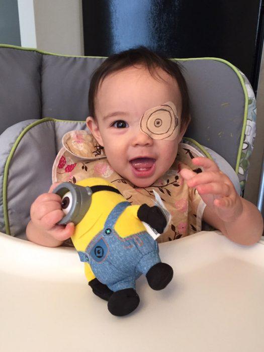 niña usando un parche en el ojo mientras tiene un juguete en sus manos