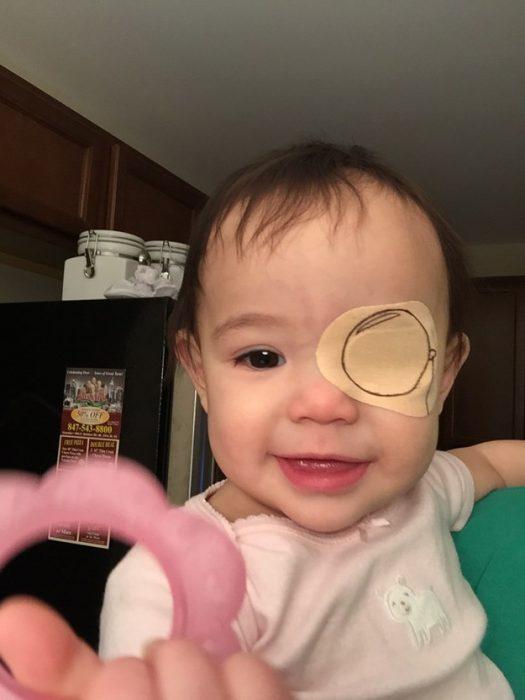 niña con un parche en el ojo