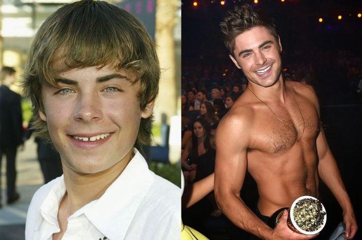 El antes y el después de Zac Efron