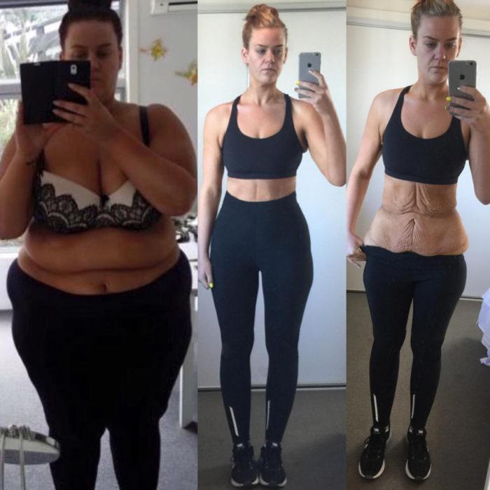 Mujer antes y después de perder peso