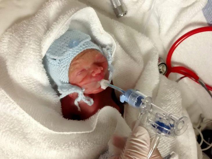Bebé conectado a tubos para que pudiera respirar