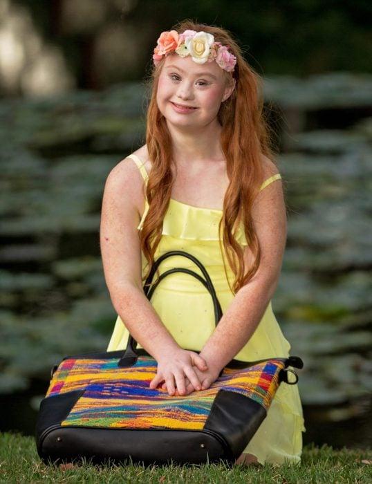 Niña con síndrome de down posando con un vestido amarillo y una bolsa
