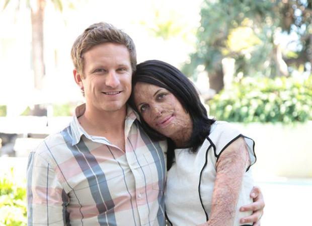 Turia Pitt junto a su novio abrazados mientras les toman una forografía