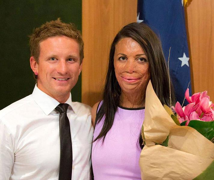 Turia Pitt cargando un ramo d flores mientras esta junto a su novio