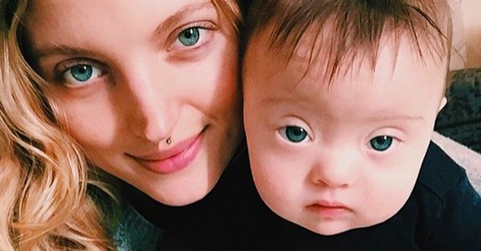 Este bebé con Síndrome de Down se volvió tan famoso en INSTAGRAM que ahora es MODELO