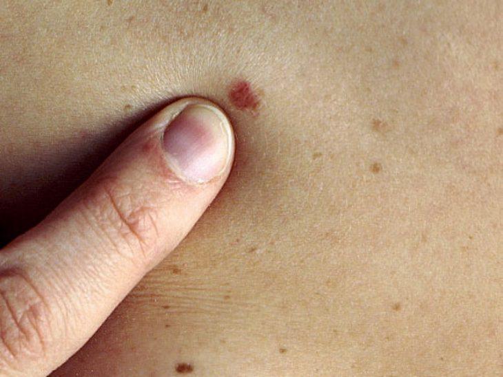 Lunar en la piel