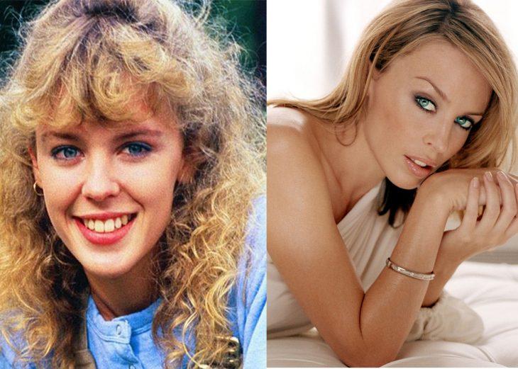 Kylie Minogue antes cuando era adolescente y después de adulta