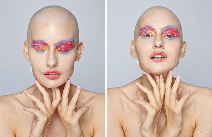 Modelo sobreviviente de cáncer posando en una sesión de fotos