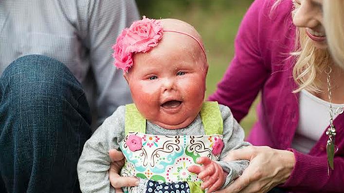 Niña con una enfermedad que hace su piel roja sentada en el pasto junto a sus padres