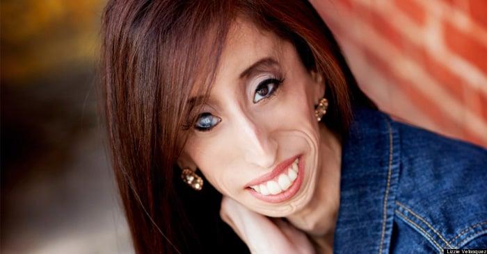 """Esta es la inspiradora historia de Lizzie Velásquez, """"la mujer más fea del mundo"""""""