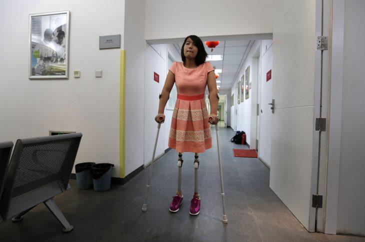 Qian con sus nuevas prótesis