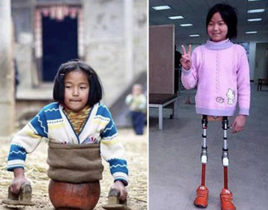 La chica baloncesto con sus primeras prótesis