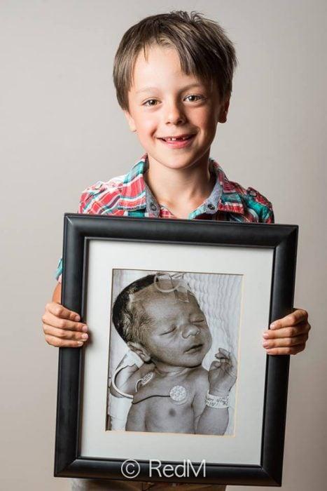 antes y después de bebés que nacieron prematuros (17)