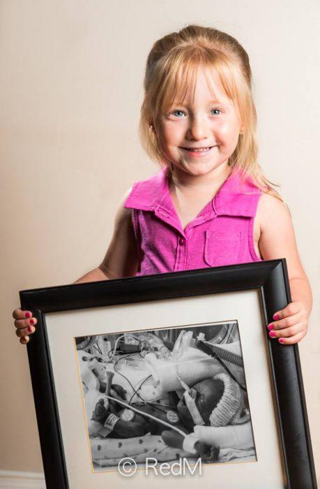 niña sosteniendo una imagen de cuando era una bebé prematura