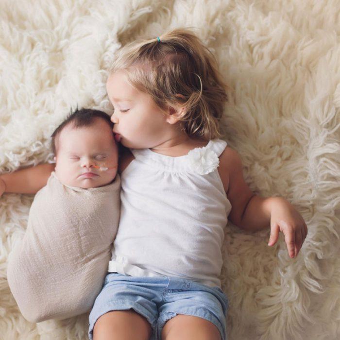sesión de fotos de una bebé que nació con un tumor en el cerebro y síndrome de down recostada en una cama junto a su hermana