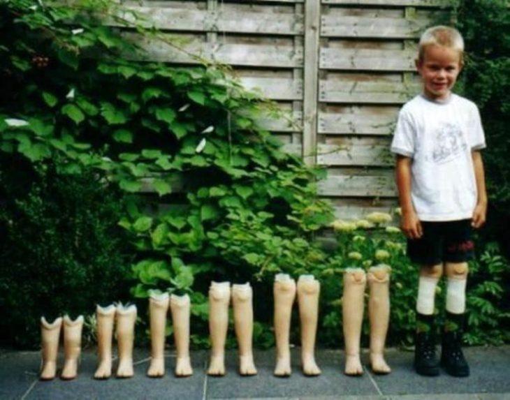 niño con prótesis de piernas de diferentes tamaños