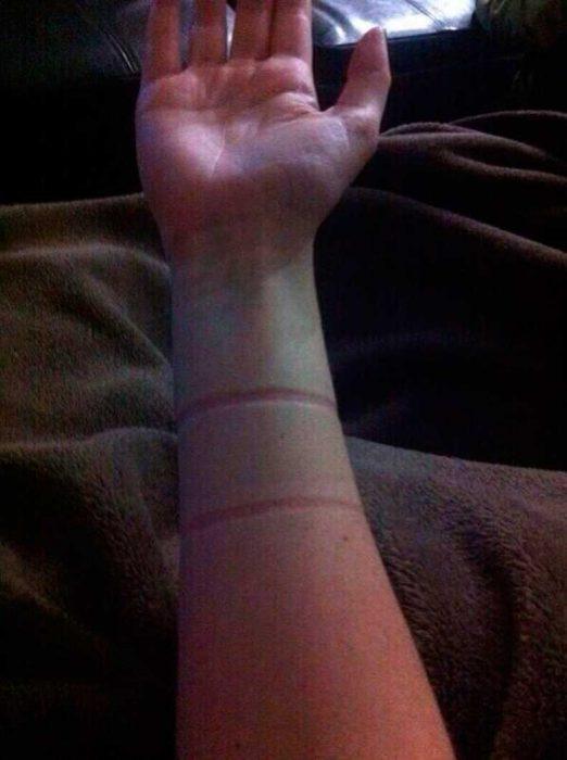 brazo con marcas de liga para cabello