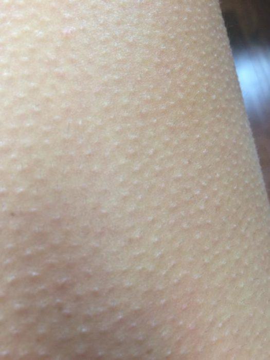 Brazo de una chica con piel de gallina