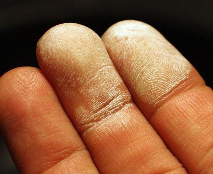 Dedos con peróxido