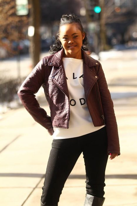 Modelo con síndrome de down posando en las calles para una fotografía