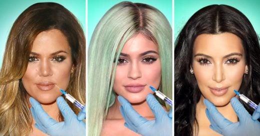 Kardashians se transforman con cirugías plasticas