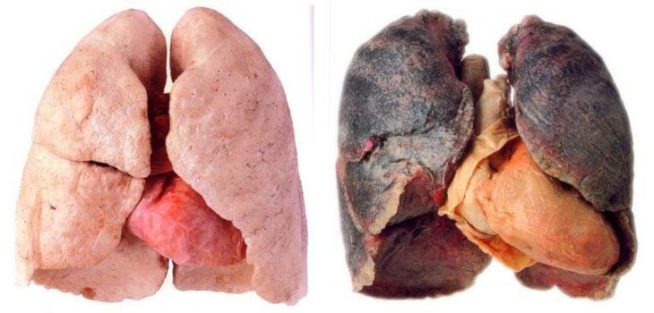 pulmones sanos vs. enfermos