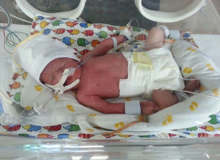 Bebé en una incubadora que lo mantenía con vida
