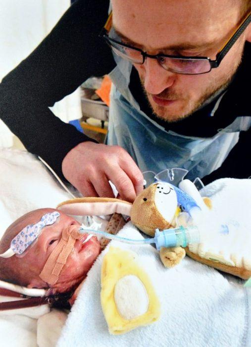 El último beso de una madre a su bebé Padre junto a su bebé que sufría de una enfermedad pulmonar rara