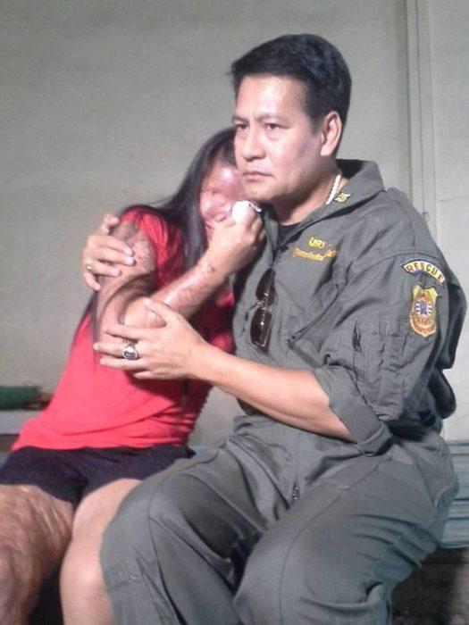 hombre con mujer quemada