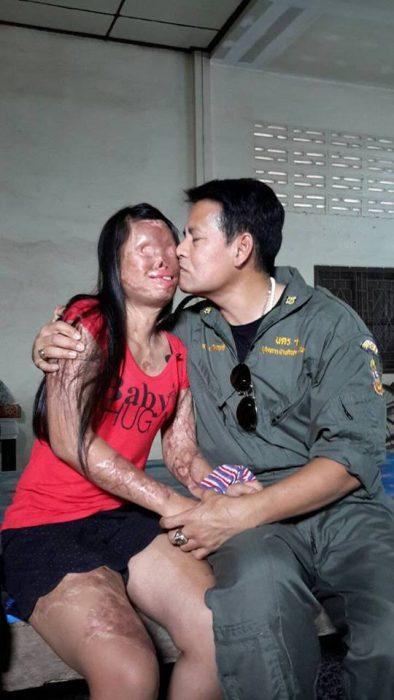 hombre con esposa quemada por ácido