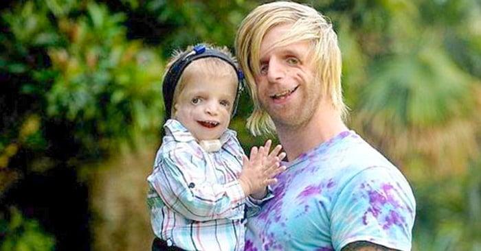Jono Lancaster de 30 años padece el extraño síndrome Treacher Collins, viajó hasta Australia para conocer a un niño con el mismo padecimiento