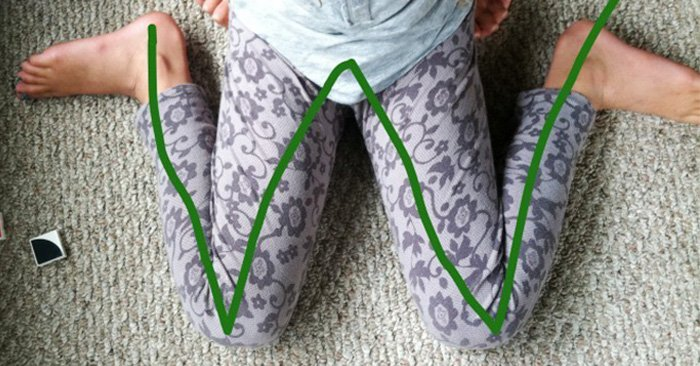 Esta postura, también conocida como postura de sastre invertida, es contraproducente para los pequeños porque se encuentran en pleno proceso de desarrollo, y podría causar deformaciones en los huesos y afectar su crecimiento