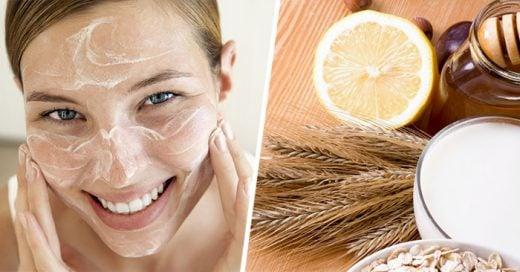 Remedios caseros sencillos para quitar las manchas de la piel