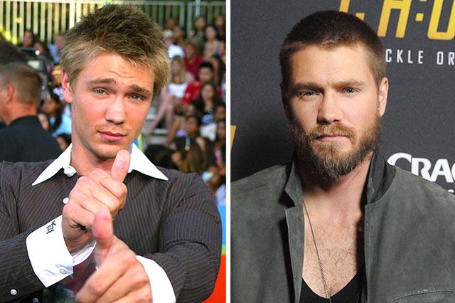 Chad Michael Murray antes y después