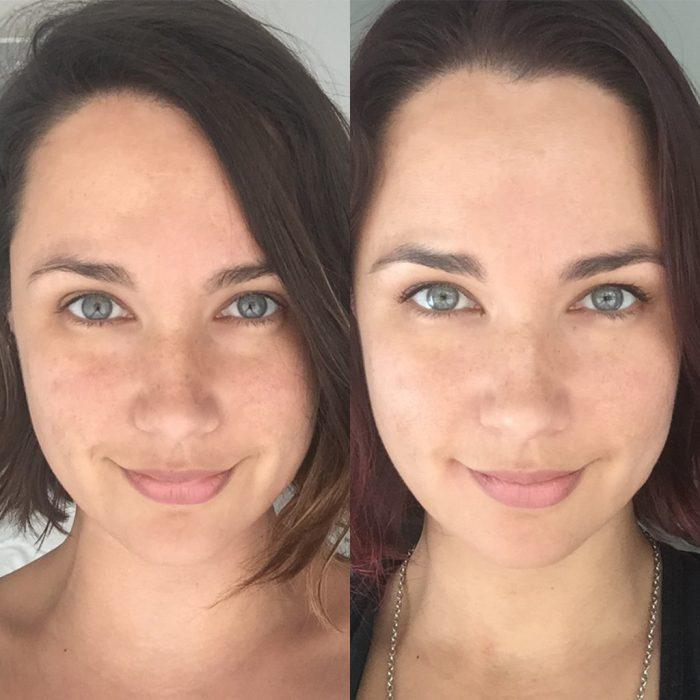 peeling medio antes y después