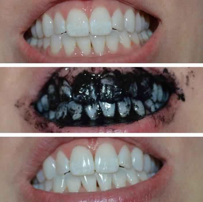 dientes con carbón