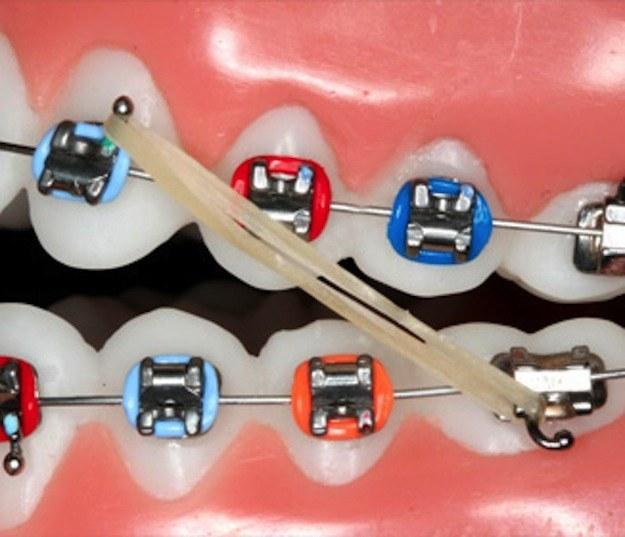 dientes con brackets y ligas