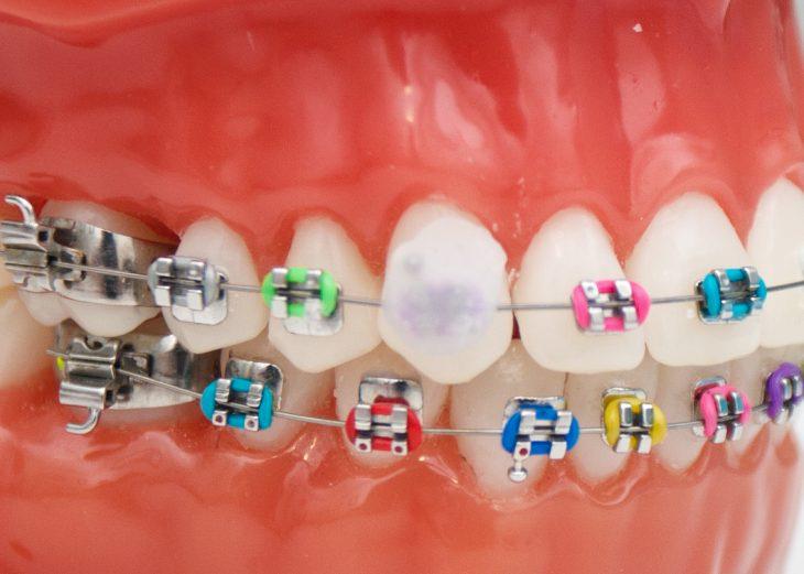 dientes con brackets y cera