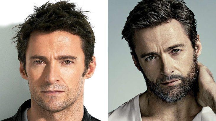Hugh Hackman antes y después